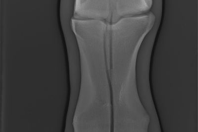 Bruch Frakturversorgung – Osteosynthese